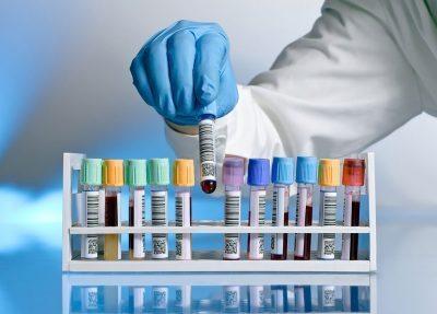 Oferta para T.S. Laboratorio Diagnóstico Clínico para el SACYL 2016